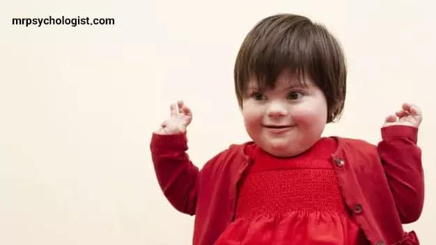 کودک مبتلا به سندرم داون