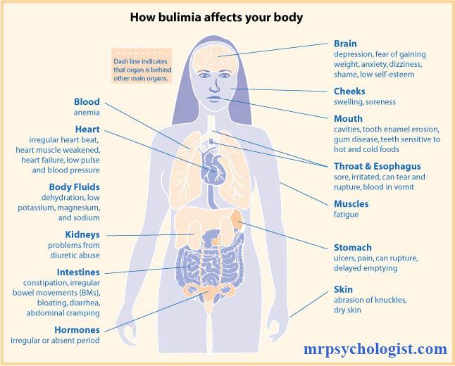 بولیمیا نروزا (Bulimia Nervosa) یا پرخوری عصبی همراه با جلوگیری