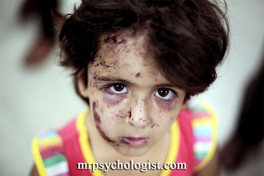 اختلال استرس پس از سانحه PTSD در کودکان
