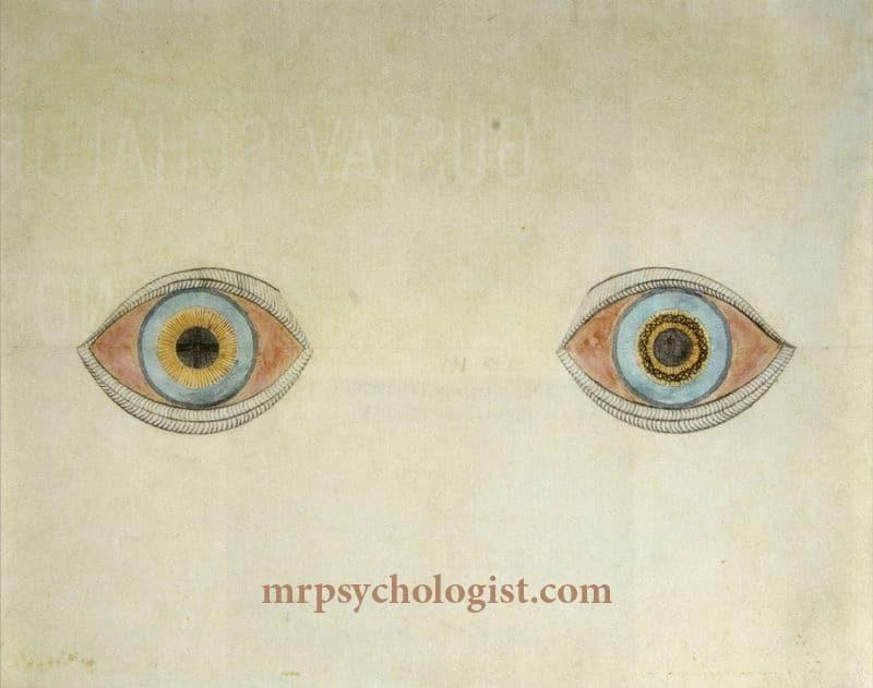 اختلال اسکیزوفرنی، روانگسیختگی یا شیزوفرنی